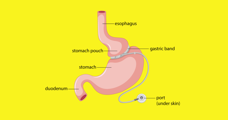 What is Gastric Banding and How it Works